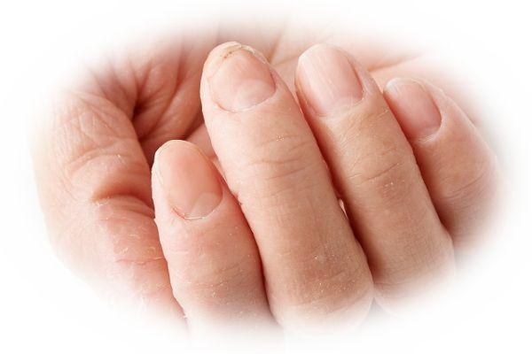 指にささくれ(ささむけ)がある夢(指のささくれから血が出ている夢)