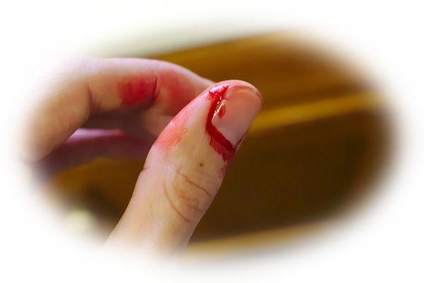 指を切る夢(指を切られる夢、指を折る夢)